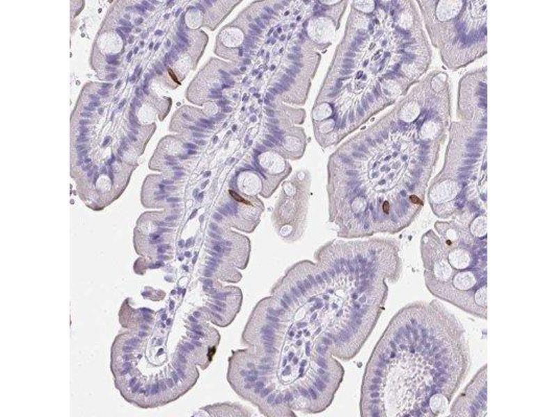 Immunohistochemistry (IHC) image for anti-Advillin (AVIL) antibody (ABIN4278537)
