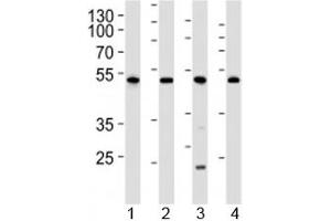 Image no. 1 for anti-Cyclin-Dependent Kinase 9 (CDK9) (AA 251-278) antibody (ABIN3030623)