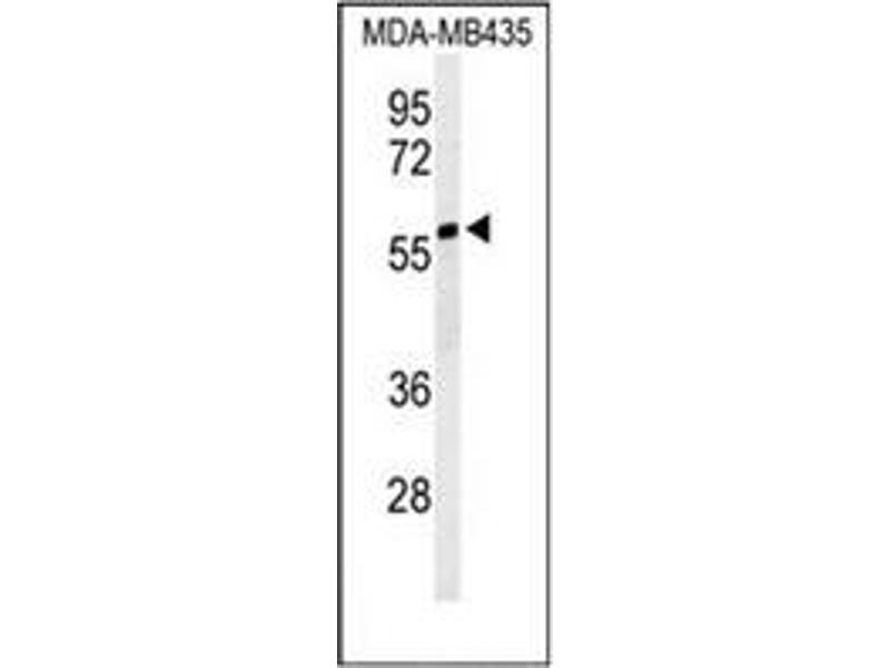 Western Blotting (WB) image for anti-Nuclear Prelamin A Recognition Factor-Like (NARFL) (AA 247-277), (Middle Region) antibody (ABIN953603)