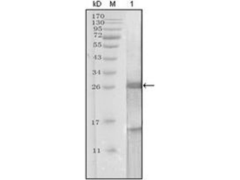 Western Blotting (WB) image for anti-Prostate Specific Antigen antibody (PSA) (ABIN1107902)