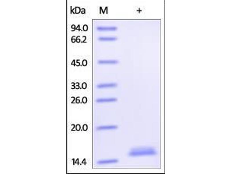 SDS-PAGE (SDS) image for Tumor Necrosis Factor (TNF) (AA 77-233) (Active) protein (Biotin) (ABIN2181833)