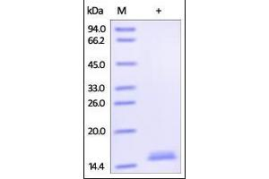 SDS-PAGE (SDS) image for Tumor Necrosis Factor (TNF) (AA 77-233) (Active) protein (Biotin) (ABIN2181834)