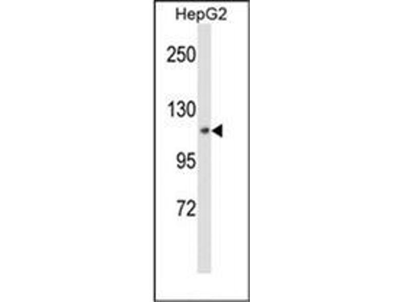 Western Blotting (WB) image for anti-MAP4K3 antibody (Mitogen-Activated Protein Kinase Kinase Kinase Kinase 3) (ABIN953301)