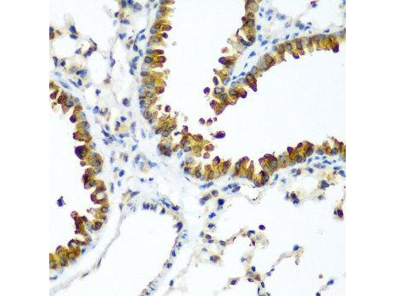 Image no. 2 for anti-WW Domain Containing Transcription Regulator 1 (WWTR1) antibody (ABIN2737822)