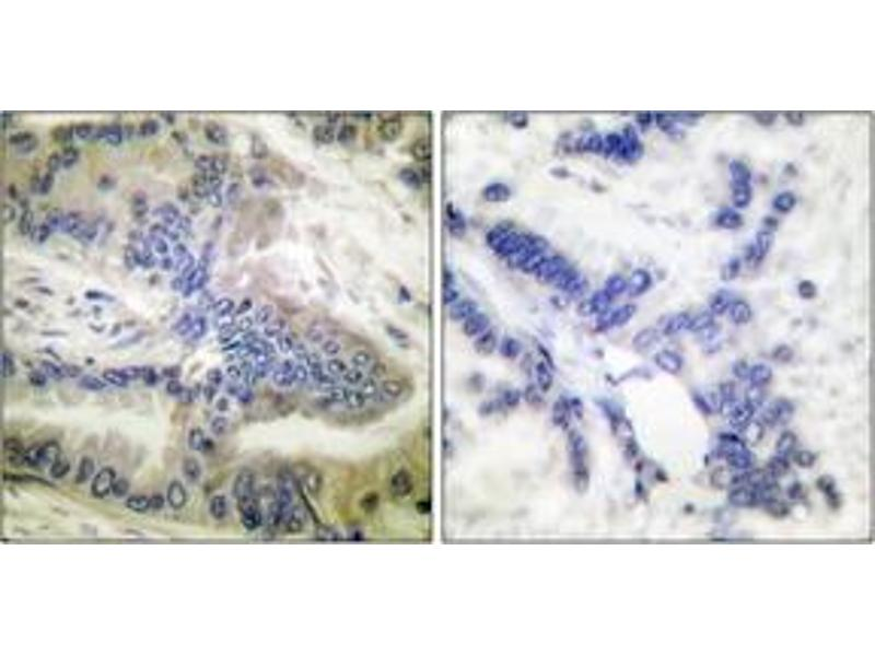 Immunohistochemistry (IHC) image for anti-Caspase 6 antibody (Caspase 6, Apoptosis-Related Cysteine Peptidase) (pSer257) (ABIN1531214)