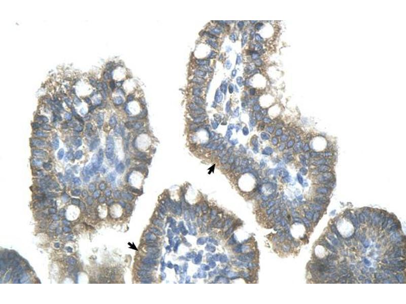 Immunohistochemistry (IHC) image for anti-Zinc Finger Protein 498 (ZNF498) (Middle Region) antibody (ABIN309738)