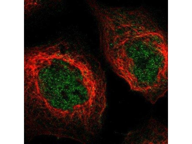 Immunofluorescence (IF) image for anti-MKNK2 antibody (MAP Kinase Interacting serine/threonine Kinase 2) (ABIN4335144)