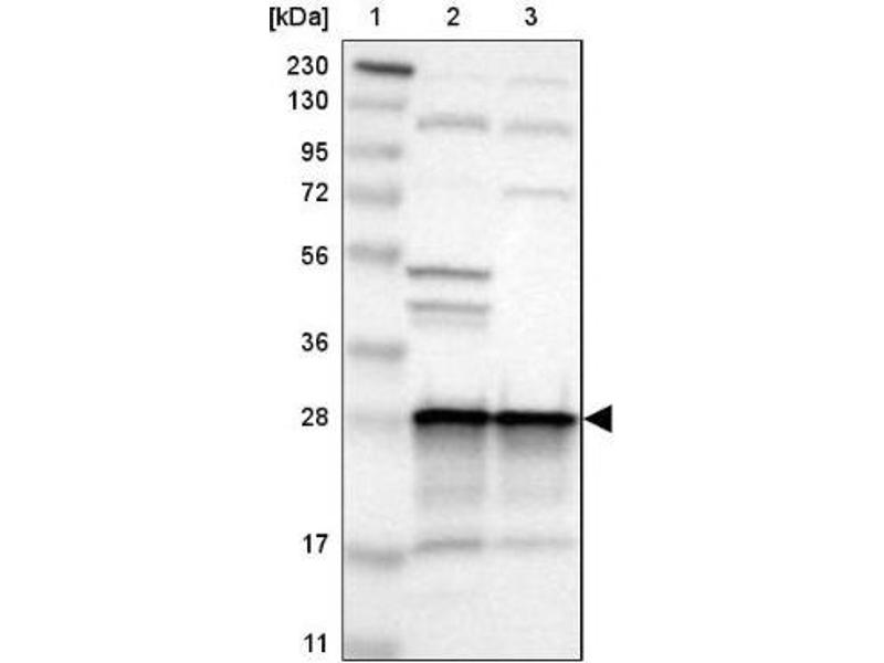 Western Blotting (WB) image for anti-Calpain S1 antibody (Calpain, Small Subunit 1) (ABIN4287346)