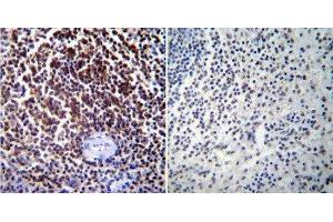 Immunohistochemistry (Paraffin-embedded Sections) (IHC (p)) image for anti-NFATC1 antibody (Nuclear Factor of Activated T-Cells, Cytoplasmic, Calcineurin-Dependent 1) (AA 1-654) (ABIN152773)