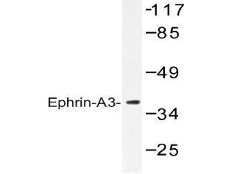 Western Blotting (WB) image for anti-Ephrin A3 antibody (EFNA3) (ABIN498283)