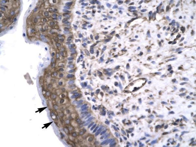 Immunohistochemistry (IHC) image for anti-General Transcription Factor IIF, Polypeptide 2, 30kDa (GTF2F2) (Middle Region) antibody (ABIN1107469)