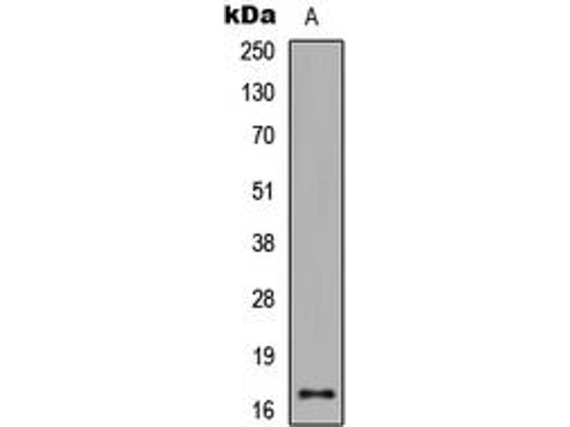 Image no. 3 for anti-Histone 3 (H3) (H3K27ac) antibody (ABIN2707562)