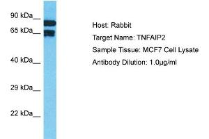 Image no. 1 for anti-Tumor Necrosis Factor, alpha-Induced Protein 2 (TNFAIP2) (N-Term) antibody (ABIN2792066)