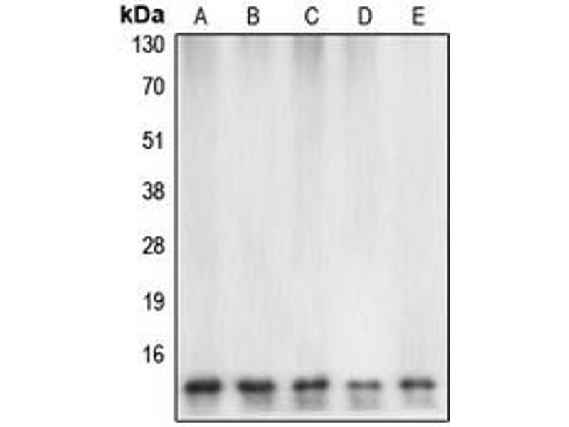 Western Blotting (WB) image for anti-Caspase 7 antibody (Caspase 7, Apoptosis-Related Cysteine Peptidase) (Center) (ABIN2705691)
