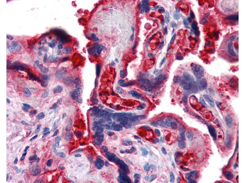 Immunohistochemistry (IHC) image for anti-Complement Component 4B (C4B) antibody (ABIN364282)