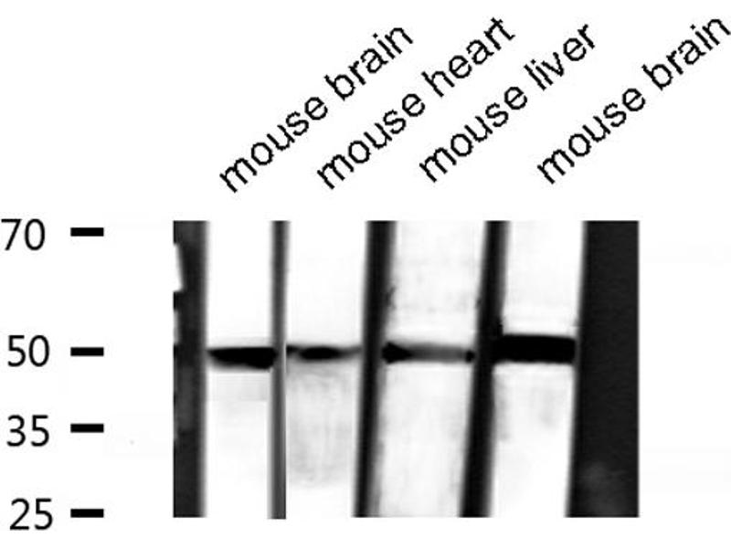 Image no. 5 for anti-alpha Tubulin (TUBA1) antibody (ABIN6269432)
