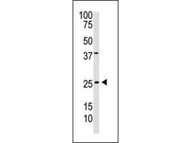 Western Blotting (WB) image for anti-PDGFB antibody (Platelet-Derived Growth Factor beta Polypeptide) (C-Term) (ABIN2493023)