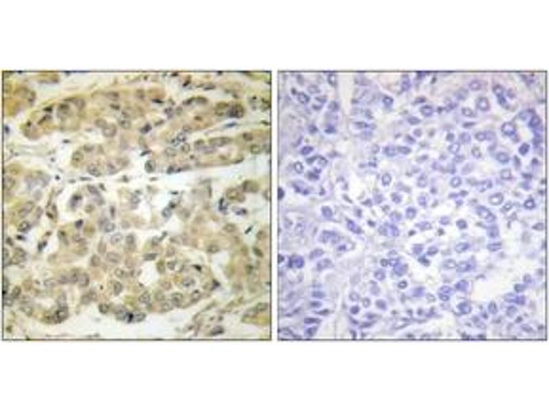 Immunohistochemistry (IHC) image for anti-tyrosine 3-Monooxygenase/tryptophan 5-Monooxygenase Activation Protein, zeta Polypeptide (YWHAZ) (AA 24-73), (pSer58) antibody (ABIN1531170)