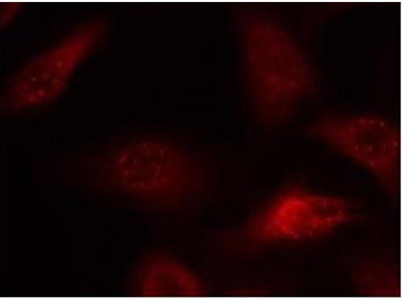 image for anti-Amyloid beta (A4) Precursor Protein (APP) (AA 666-670) antibody (ABIN6652710)