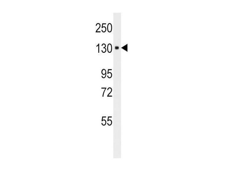Western Blotting (WB) image for anti-ITA6 antibody (ABIN658988)