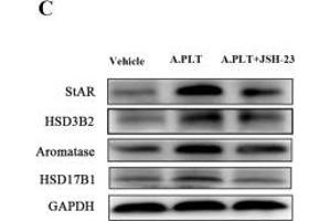 Image no. 6 for anti-Hydroxy-delta-5-Steroid Dehydrogenase, 3 beta- and Steroid delta-Isomerase 2 (HSD3B2) (Center) antibody (ABIN2855488)
