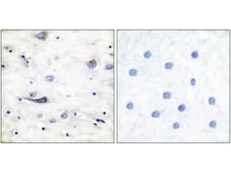 Immunohistochemistry (IHC) image for anti-GRIA1 antibody (Glutamate Receptor, Ionotropic, AMPA 1) (pSer863) (ABIN1531852)