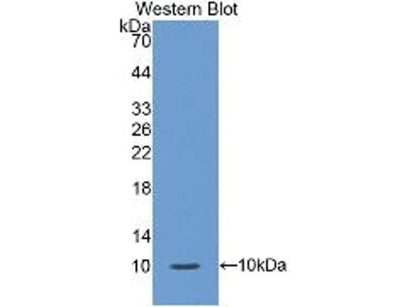 S100 Calcium Binding Protein A12 (S100A12) ELISA Kit (3)