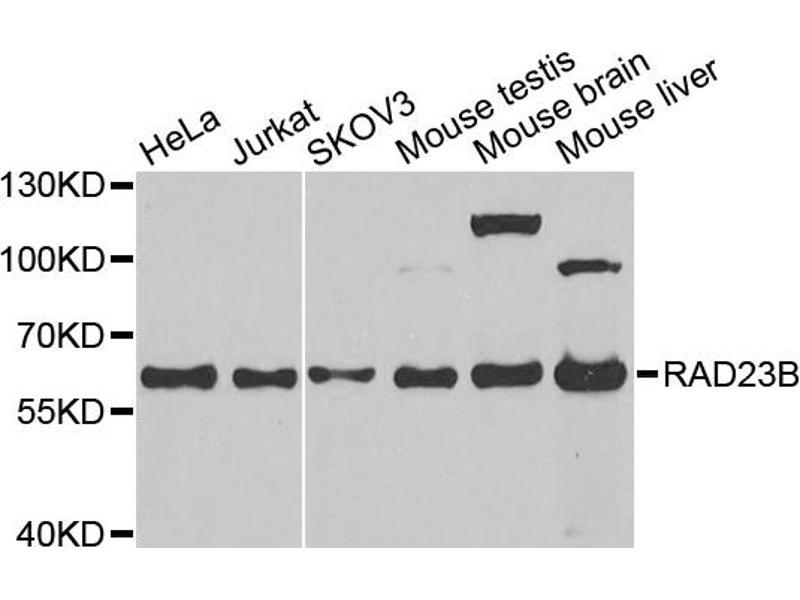 Image no. 1 for anti-RAD23 Homolog B (S. Cerevisiae) (RAD23B) antibody (ABIN6566885)