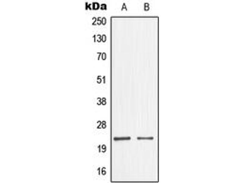 Western Blotting (WB) image for anti-Non-Metastatic Cells 1, Protein (NM23A) Expressed in (NME1) (Center) antibody (ABIN2706696)