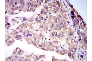 Immunohistochemistry (Paraffin-embedded Sections) (IHC (p)) image for anti-MMP2 Antikörper (Matrix Metalloproteinase 2) (Internal Region) (ABIN268224)