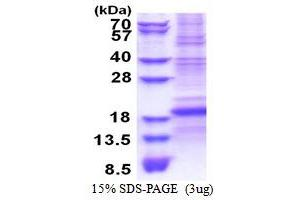 Image no. 1 for CD8b Molecule (CD8B) (AA 22-170) protein (His tag) (ABIN5853494)
