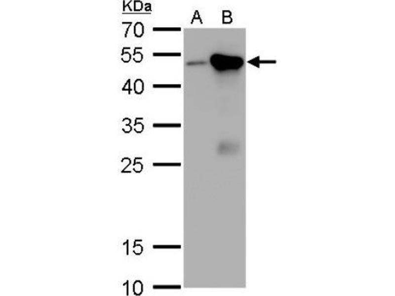 Western Blotting (WB) image for anti-Craniofacial Development Protein 1 (CFDP1) (Center) antibody (ABIN4265003)