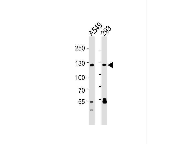 Western Blotting (WB) image for anti-Sirtuin 1 (SIRT1) (AA 1-180) antibody (ABIN1882053)