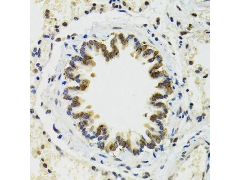Immunohistochemistry (Paraffin-embedded Sections) (IHC (p)) image for anti-RuvB-Like 2 (E. Coli) (RUVBL2) antibody (ABIN6147322)