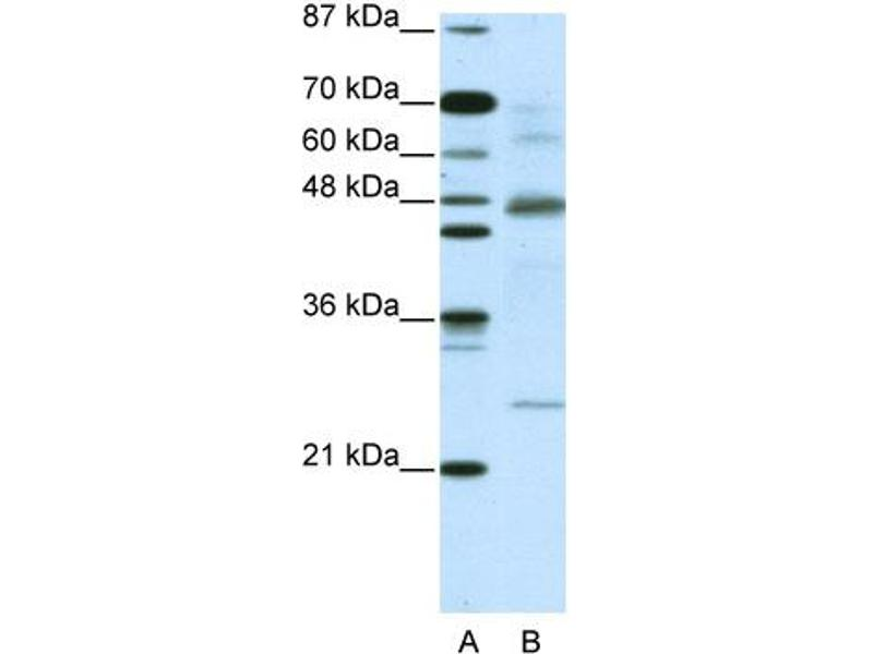 Western Blotting (WB) image for anti-Nuclear Factor of kappa Light Polypeptide Gene Enhancer in B-Cells Inhibitor, beta (NFKBIB) (C-Term) antibody (ABIN2775837)