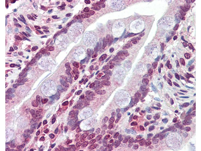 Image no. 1 for anti-ATP-Binding Cassette, Sub-Family C (CFTR/MRP), Member 8 (ABCC8) (N-Term) antibody (ABIN2781496)