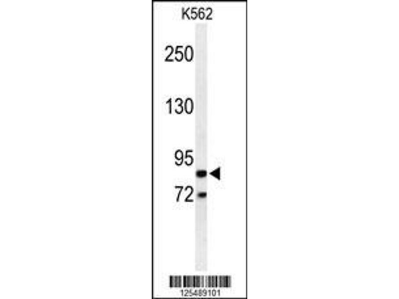 Western Blotting (WB) image for anti-Advillin (AVIL) (AA 176-204), (N-Term) antibody (ABIN650952)