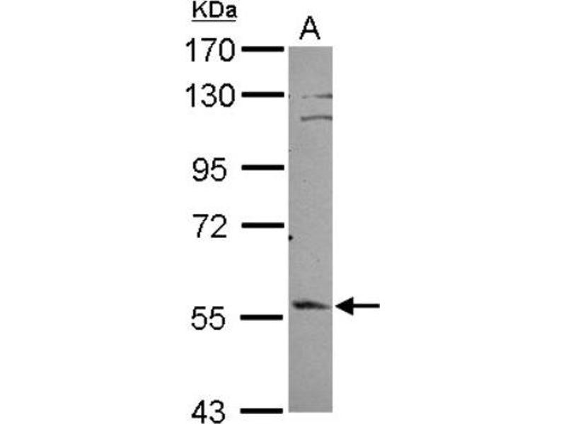 Western Blotting (WB) image for anti-Exocyst Complex Component 1 (EXOC1) (C-Term) antibody (ABIN4352412)