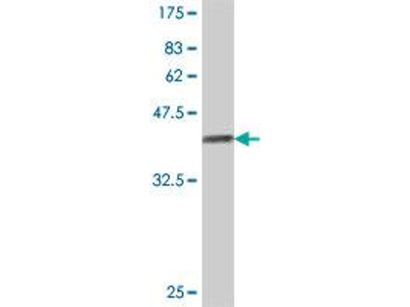 Image no. 2 for anti-Protein tyrosine Phosphatase, Receptor Type, F Polypeptide (PTPRF), Interacting Protein (Liprin), alpha 3 (PPFIA3) (AA 1043-1139) antibody (ABIN563679)