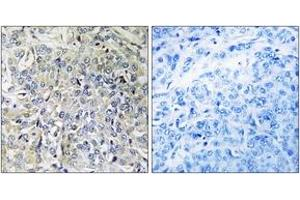 Image no. 1 for anti-Chondroitin Sulfate N-Acetylgalactosaminyltransferase 2 (CSGALNACT2) (AA 61-110) antibody (ABIN1534771)