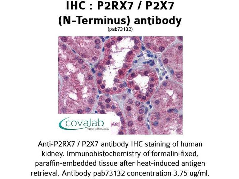 image for anti-Purinergic Receptor P2X, Ligand-Gated Ion Channel, 7 (P2RX7) (N-Term) antibody (ABIN1737744)