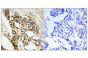 Image no. 4 for anti-Mitogen-Activated Protein Kinase-Activated Protein Kinase 2 (MAPKAPK2) (Ser272) antibody (ABIN1848344)