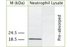 Image no. 1 for anti-Cathelicidin Antimicrobial Peptide (CAMP) (AA 40-80) antibody (ABIN350179)