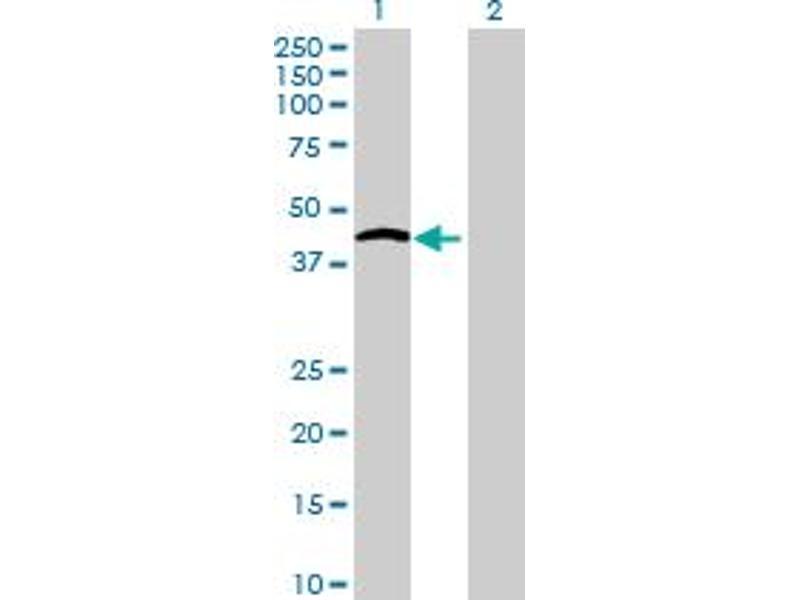Image no. 1 for anti-Hydroxysteroid (11-Beta) Dehydrogenase 2 (HSD11B2) (AA 1-405) antibody (ABIN516705)
