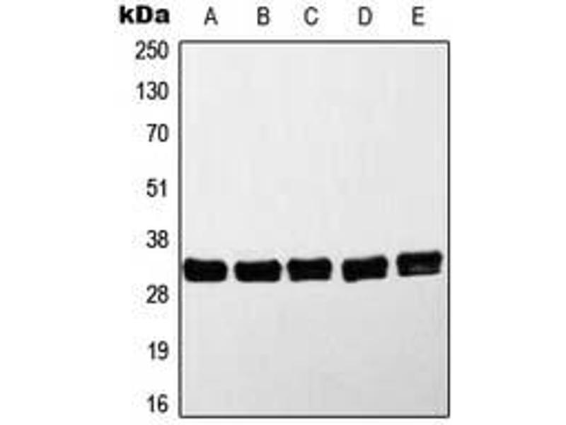 Western Blotting (WB) image for anti-Myeloid Differentiation Primary Response Gene (88) (MYD88) antibody (ABIN2993235)