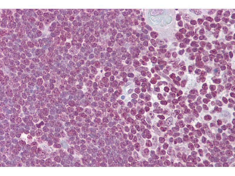 Immunohistochemistry (IHC) image for anti-CD40 Ligand (CD40LG) (Middle Region) antibody (ABIN2778145)
