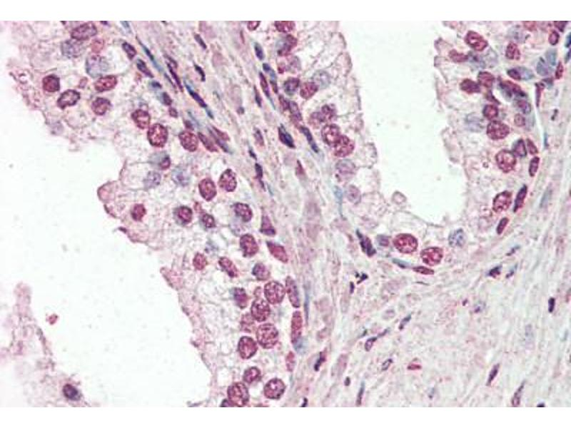 Immunohistochemistry (Paraffin-embedded Sections) (IHC (p)) image for anti-PIAS2 antibody (Protein Inhibitor of Activated STAT, 2) (AA 431-445) (ABIN461934)