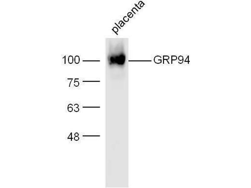 Western Blotting (WB) image for anti-Heat Shock Protein 90kDa beta (Grp94), Member 1 (HSP90B1) (AA 550-600) antibody (ABIN726125)