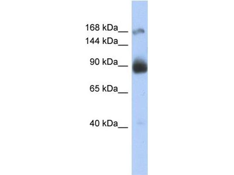 Western Blotting (WB) image for anti-Insulin Receptor antibody (INSR) (Middle Region) (ABIN2792204)