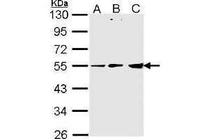 Image no. 1 for anti-Pyruvate Dehydrogenase Complex, Component X (PDHX) (C-Term) antibody (ABIN2856340)